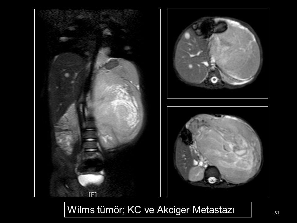 Wilms tümör; KC ve Akciger Metastazı