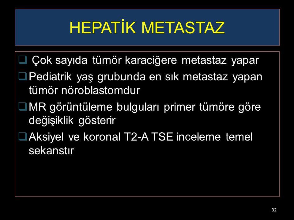 HEPATİK METASTAZ Çok sayıda tümör karaciğere metastaz yapar