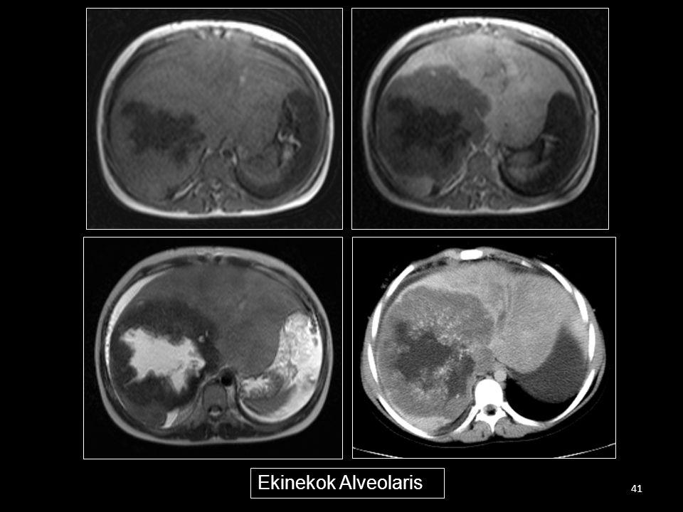 Ekinekok Alveolaris