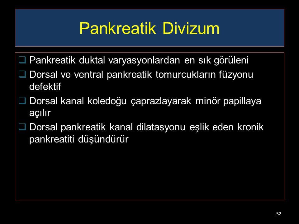 Pankreatik Divizum Pankreatik duktal varyasyonlardan en sık görüleni