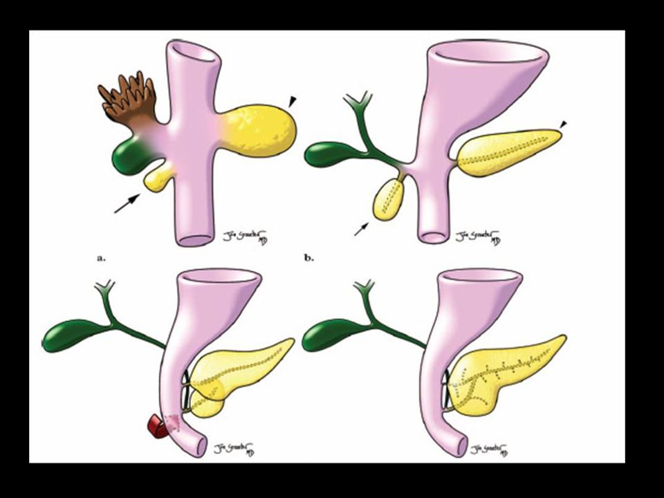 Drawings illustrate the normal embryologic development of the pancreas and biliary tree.
