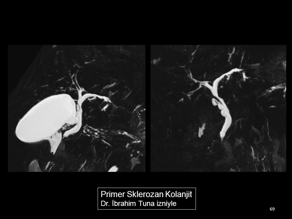 Primer Sklerozan Kolanjit