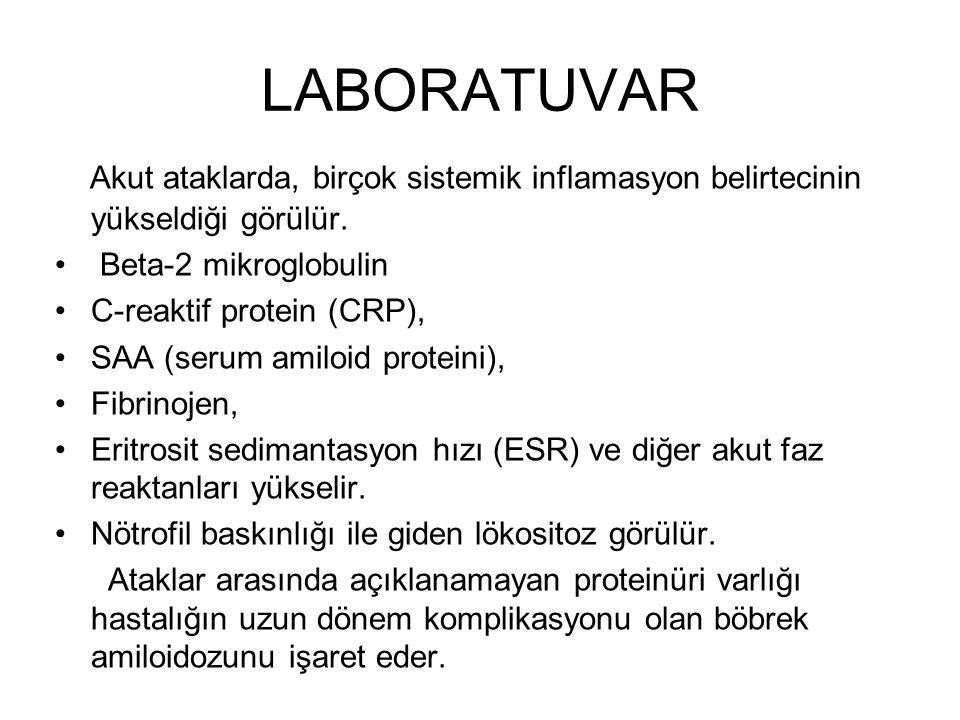 LABORATUVAR Akut ataklarda, birçok sistemik inflamasyon belirtecinin yükseldiği görülür. Beta-2 mikroglobulin.