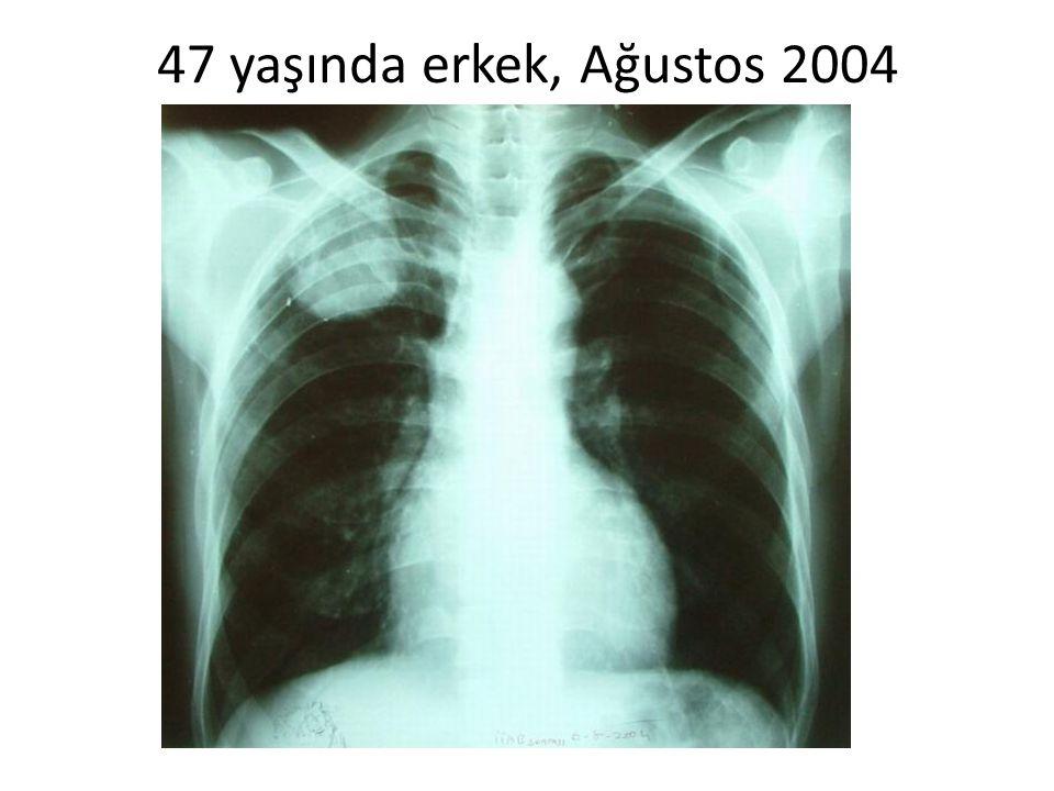 47 yaşında erkek, Ağustos 2004