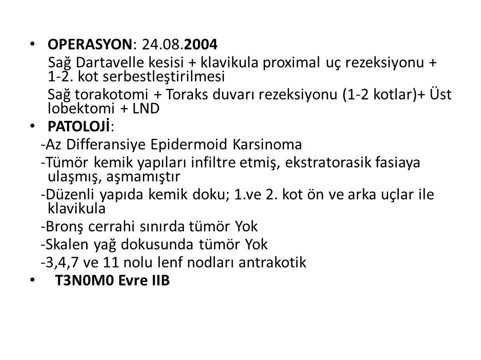 OPERASYON: 24.08.2004 Sağ Dartavelle kesisi + klavikula proximal uç rezeksiyonu + 1-2. kot serbestleştirilmesi.
