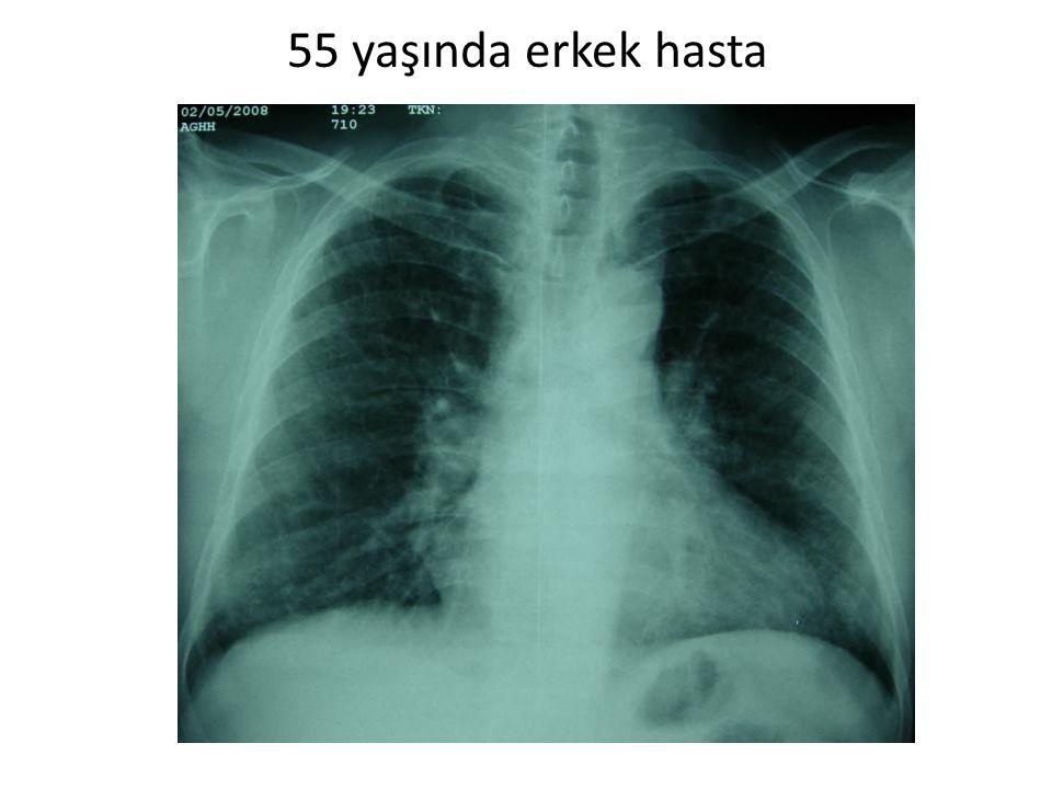 55 yaşında erkek hasta