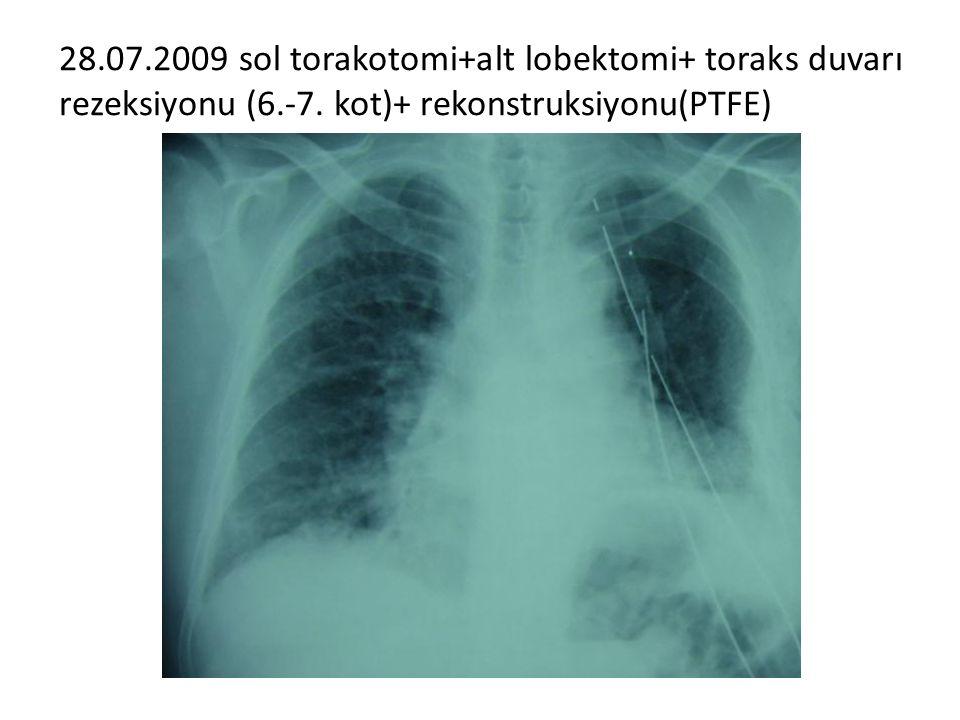 28.07.2009 sol torakotomi+alt lobektomi+ toraks duvarı rezeksiyonu (6.-7.