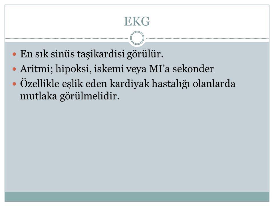 EKG En sık sinüs taşikardisi görülür.