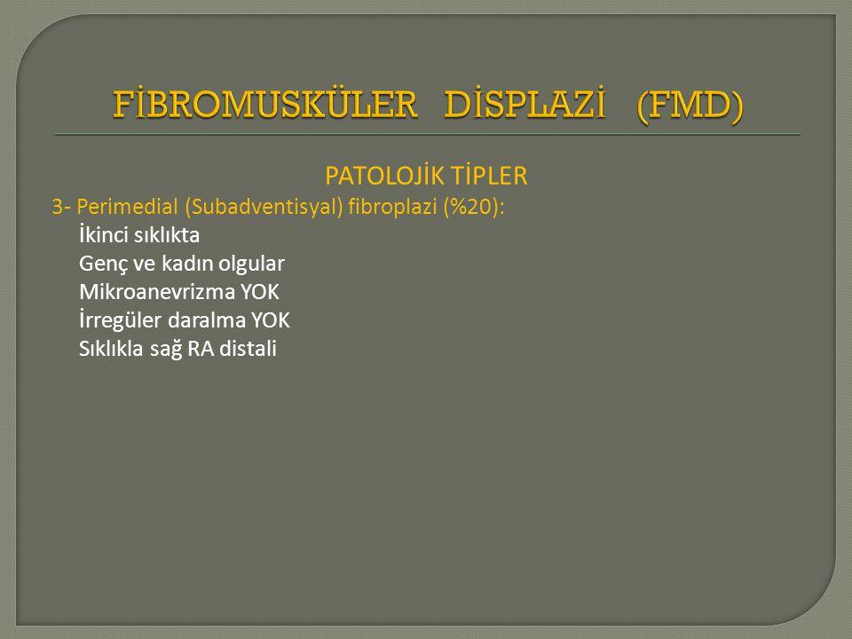FİBROMUSKÜLER DİSPLAZİ (FMD)