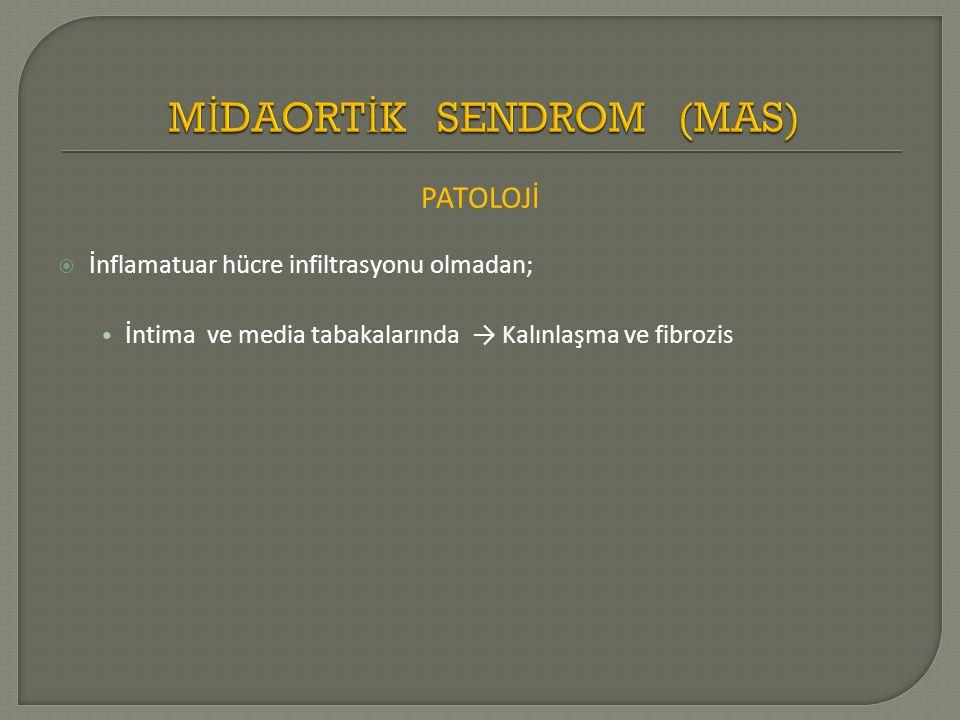 MİDAORTİK SENDROM (MAS)