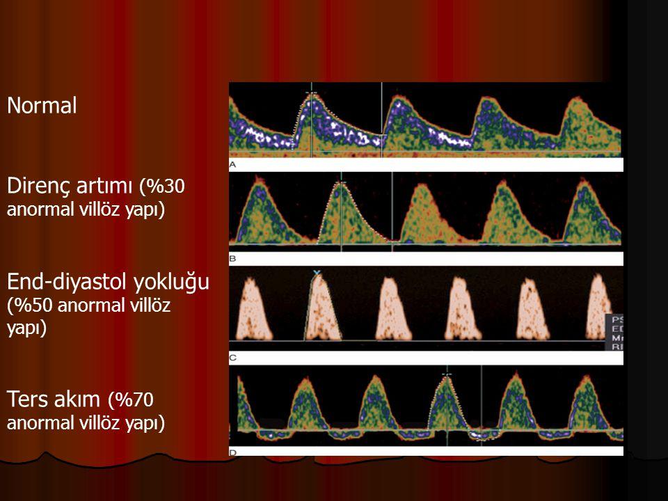 Normal Direnç artımı (%30 anormal villöz yapı) End-diyastol yokluğu (%50 anormal villöz yapı) Ters akım (%70 anormal villöz yapı)