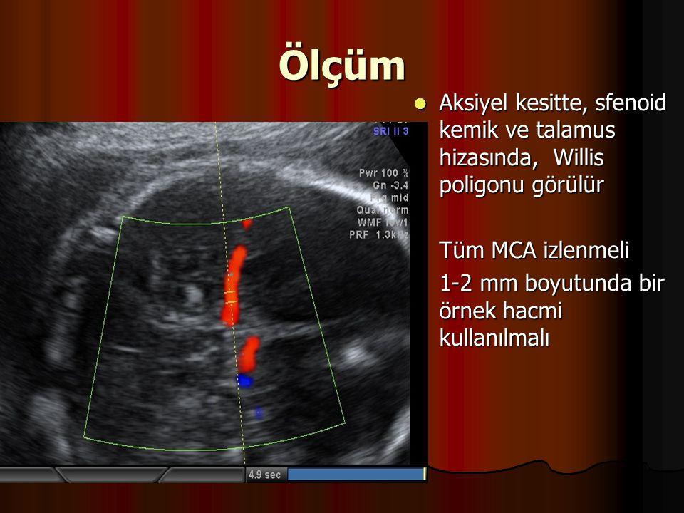 Ölçüm Aksiyel kesitte, sfenoid kemik ve talamus hizasında, Willis poligonu görülür. Tüm MCA izlenmeli.