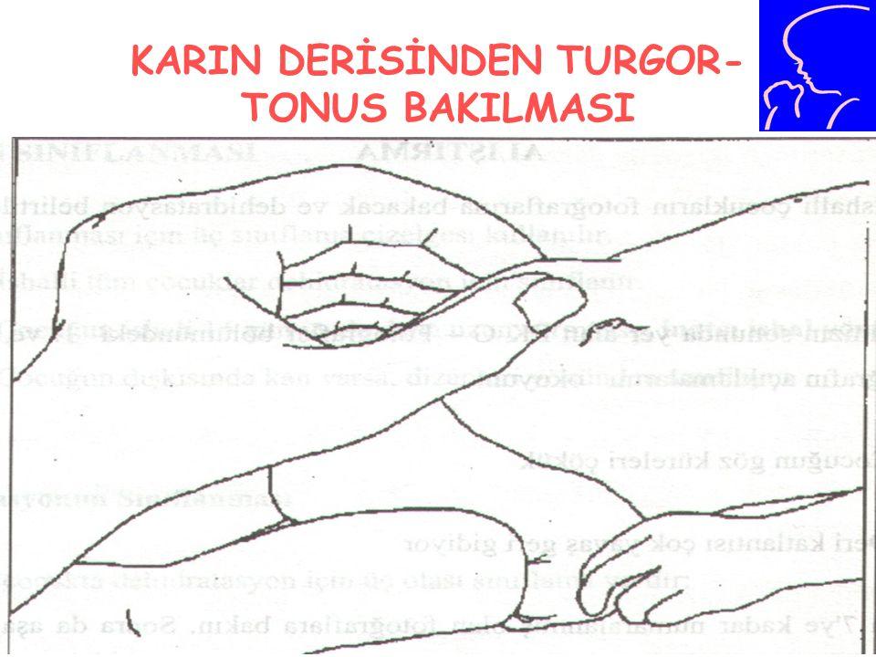 KARIN DERİSİNDEN TURGOR-TONUS BAKILMASI