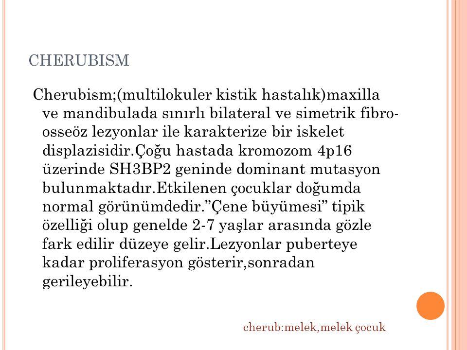 cherubism