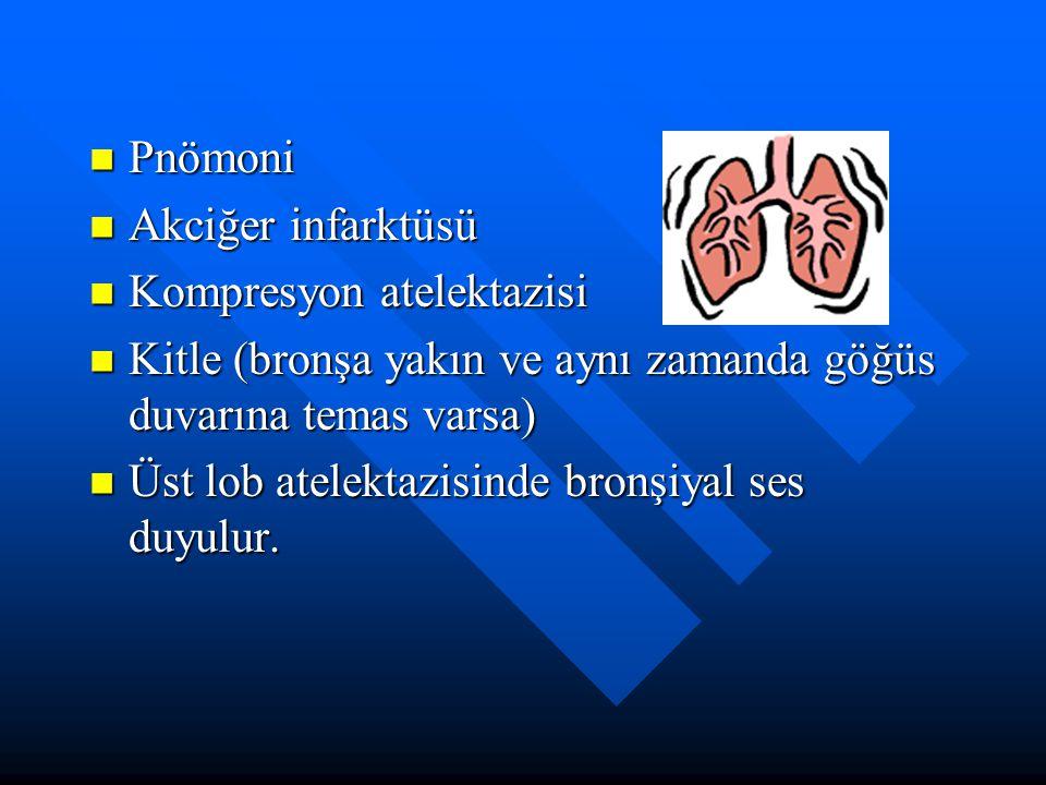Pnömoni Akciğer infarktüsü. Kompresyon atelektazisi. Kitle (bronşa yakın ve aynı zamanda göğüs duvarına temas varsa)
