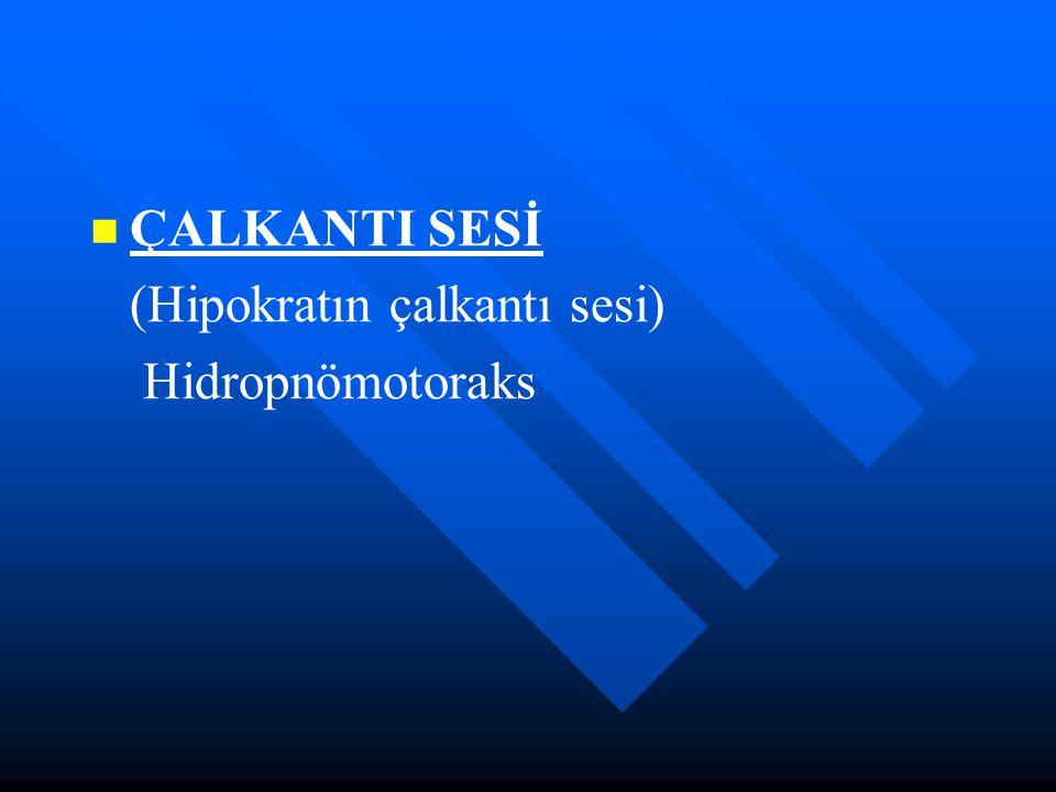 ÇALKANTI SESİ (Hipokratın çalkantı sesi) Hidropnömotoraks