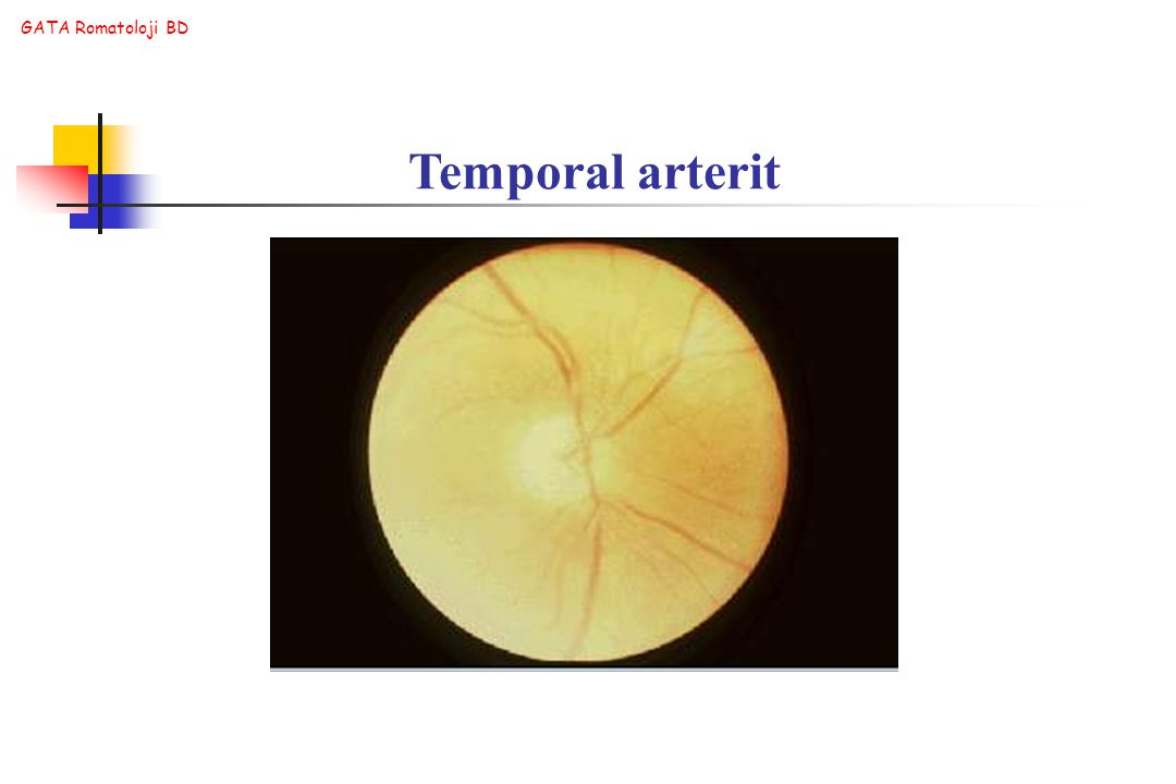 Temporal arterit