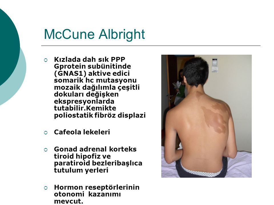 McCune Albright