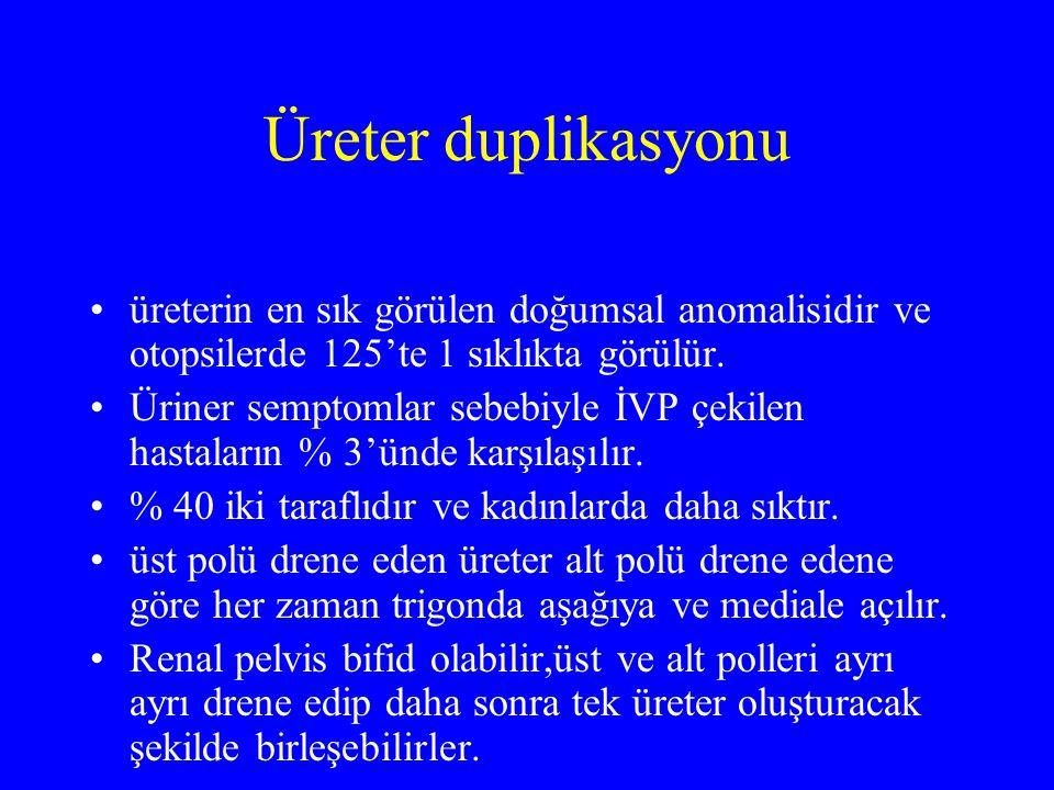 Üreter duplikasyonu üreterin en sık görülen doğumsal anomalisidir ve otopsilerde 125'te 1 sıklıkta görülür.