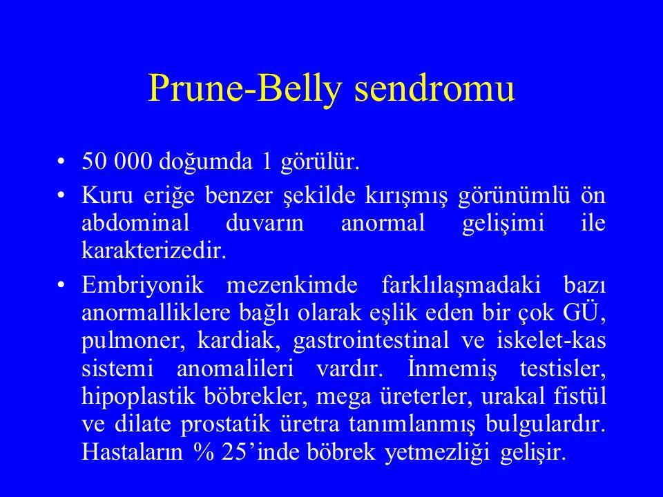 Prune-Belly sendromu 50 000 doğumda 1 görülür.