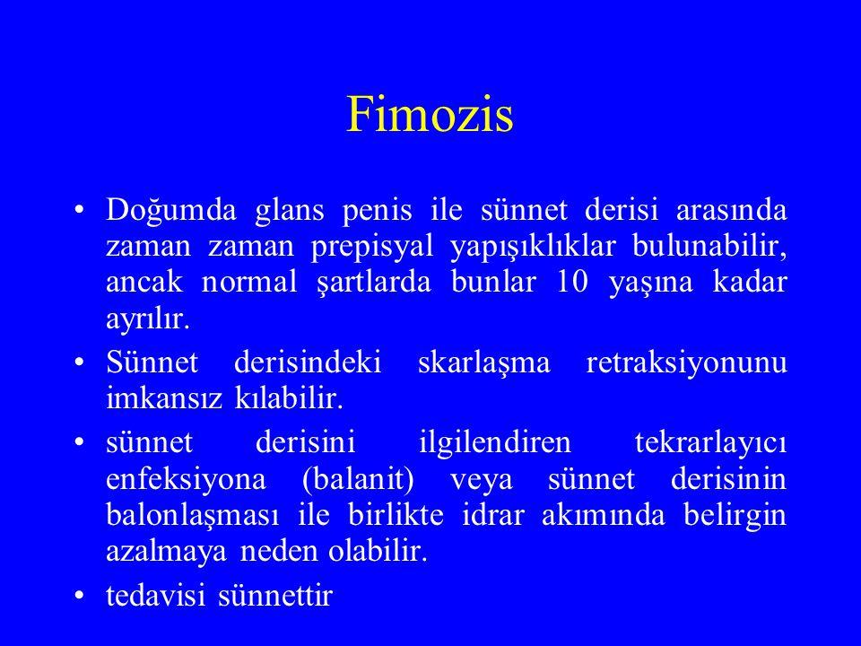 Fimozis