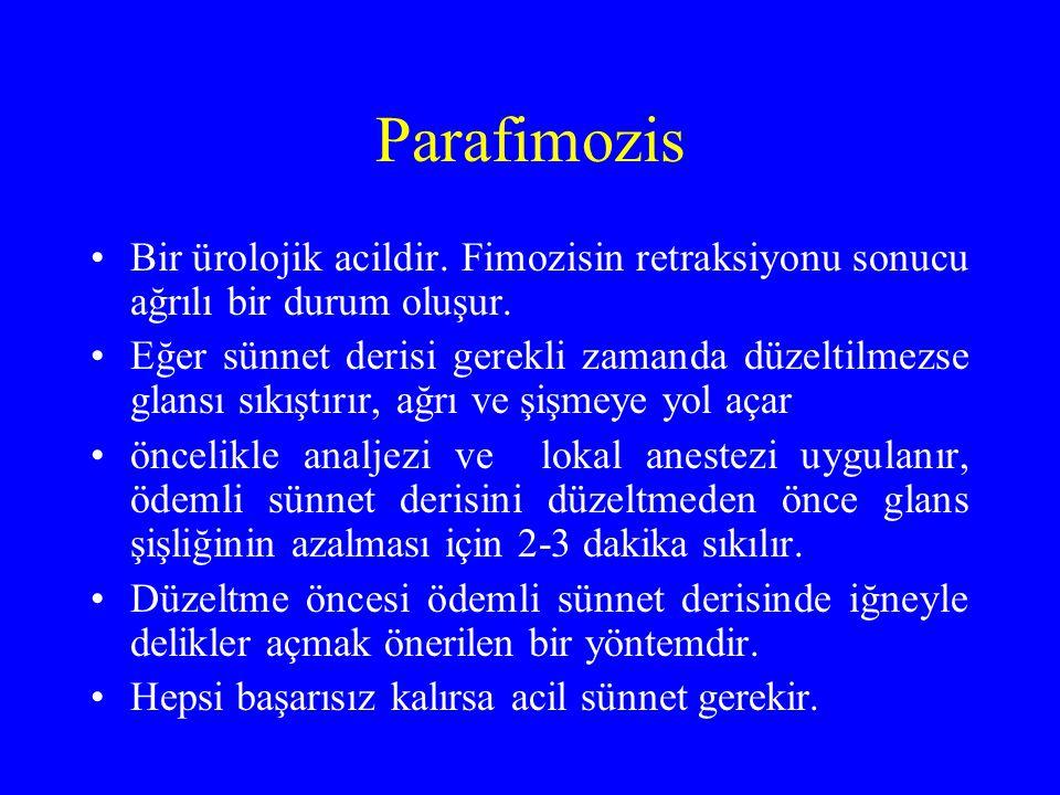 Parafimozis Bir ürolojik acildir. Fimozisin retraksiyonu sonucu ağrılı bir durum oluşur.