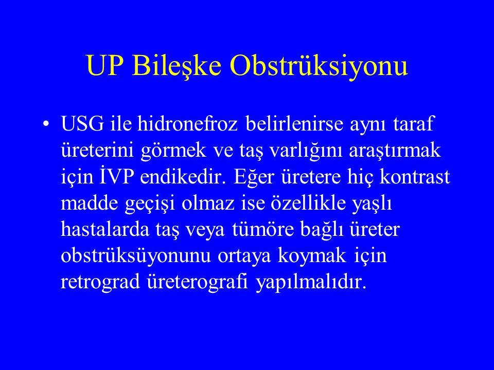 UP Bileşke Obstrüksiyonu