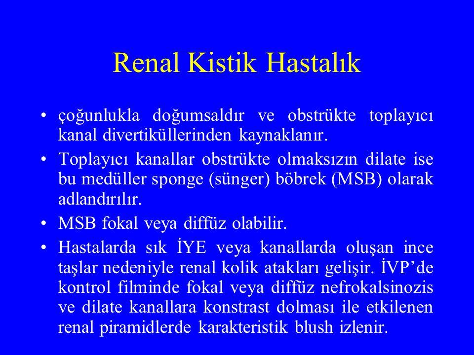 Renal Kistik Hastalık çoğunlukla doğumsaldır ve obstrükte toplayıcı kanal divertiküllerinden kaynaklanır.