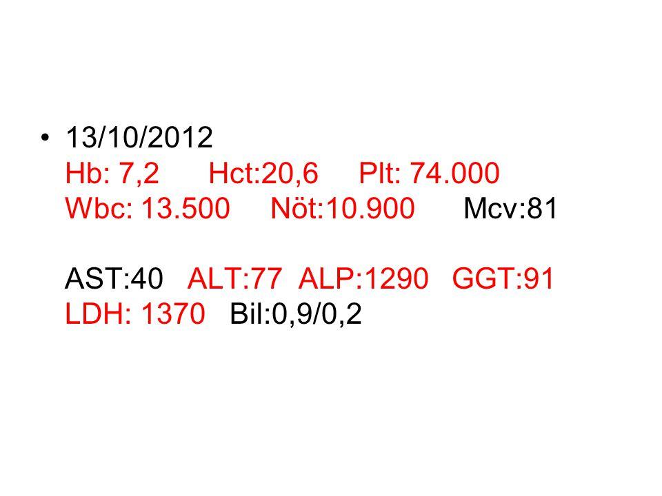 13/10/2012 Hb: 7,2 Hct:20,6 Plt: 74. 000 Wbc: 13. 500 Nöt:10