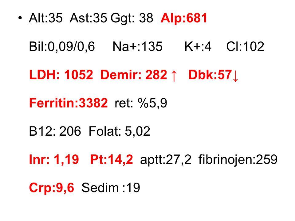Alt:35 Ast:35 Ggt: 38 Alp:681 Bil:0,09/0,6 Na+:135 K+:4 Cl:102 LDH: 1052 Demir: 282 ↑ Dbk:57↓ Ferritin:3382 ret: %5,9 B12: 206 Folat: 5,02 Inr: 1,19 Pt:14,2 aptt:27,2 fibrinojen:259 Crp:9,6 Sedim :19