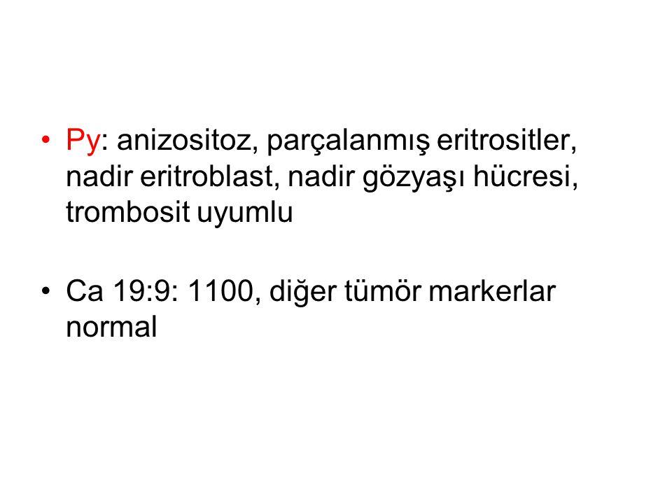 Py: anizositoz, parçalanmış eritrositler, nadir eritroblast, nadir gözyaşı hücresi, trombosit uyumlu