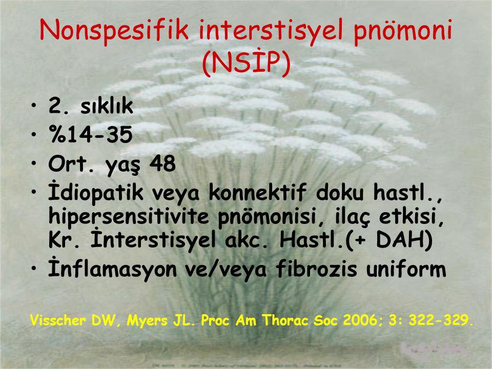 Nonspesifik interstisyel pnömoni (NSİP)