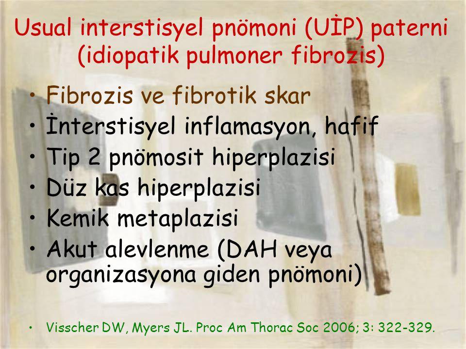 Usual interstisyel pnömoni (UİP) paterni (idiopatik pulmoner fibrozis)