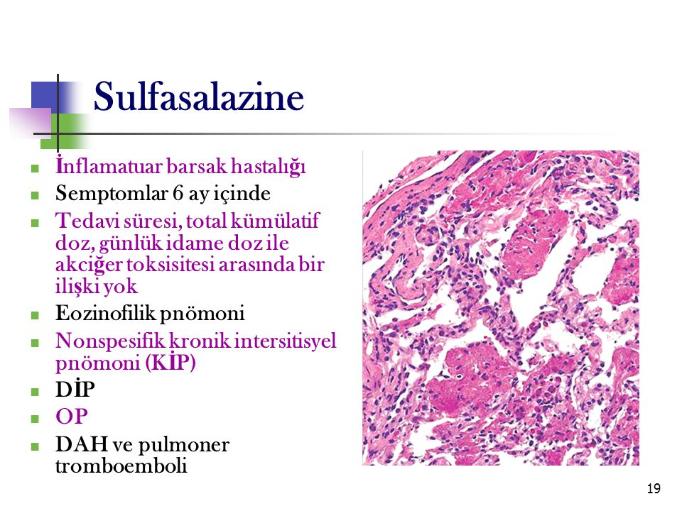 Sulfasalazine İnflamatuar barsak hastalığı Semptomlar 6 ay içinde