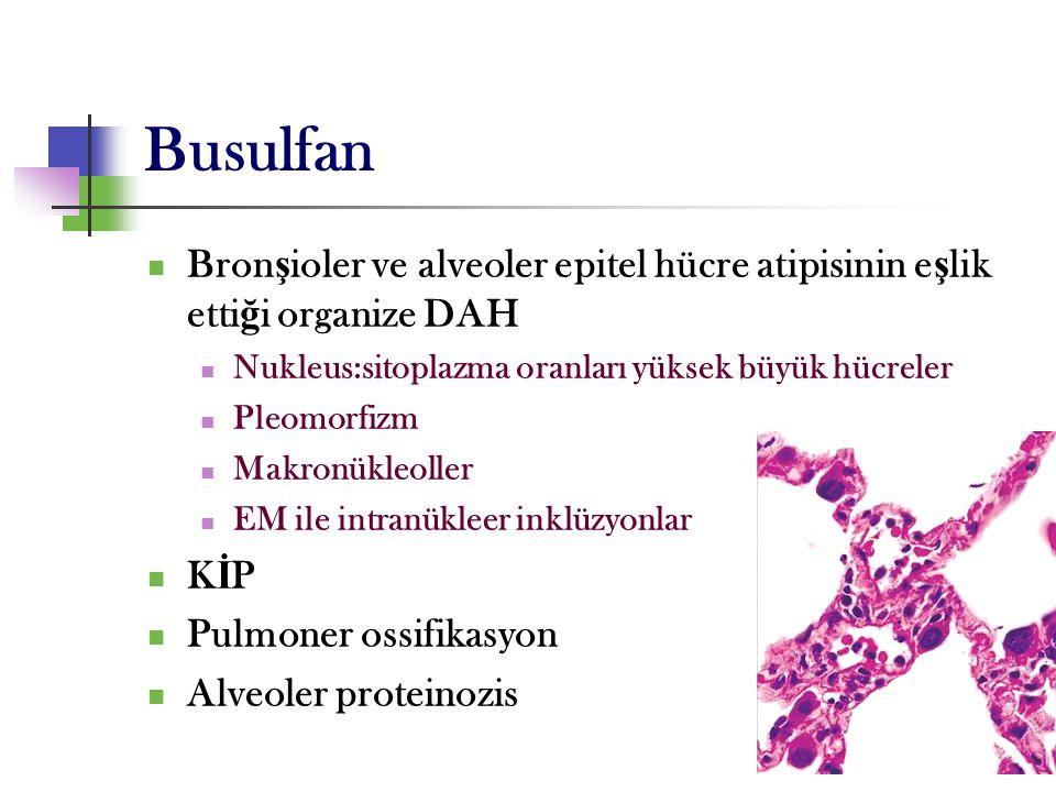 Busulfan Bronşioler ve alveoler epitel hücre atipisinin eşlik ettiği organize DAH. Nukleus:sitoplazma oranları yüksek büyük hücreler.