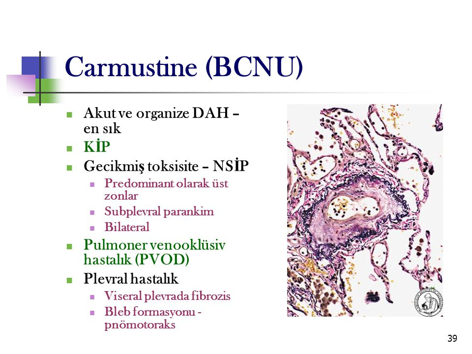 Carmustine (BCNU) Akut ve organize DAH – en sık KİP