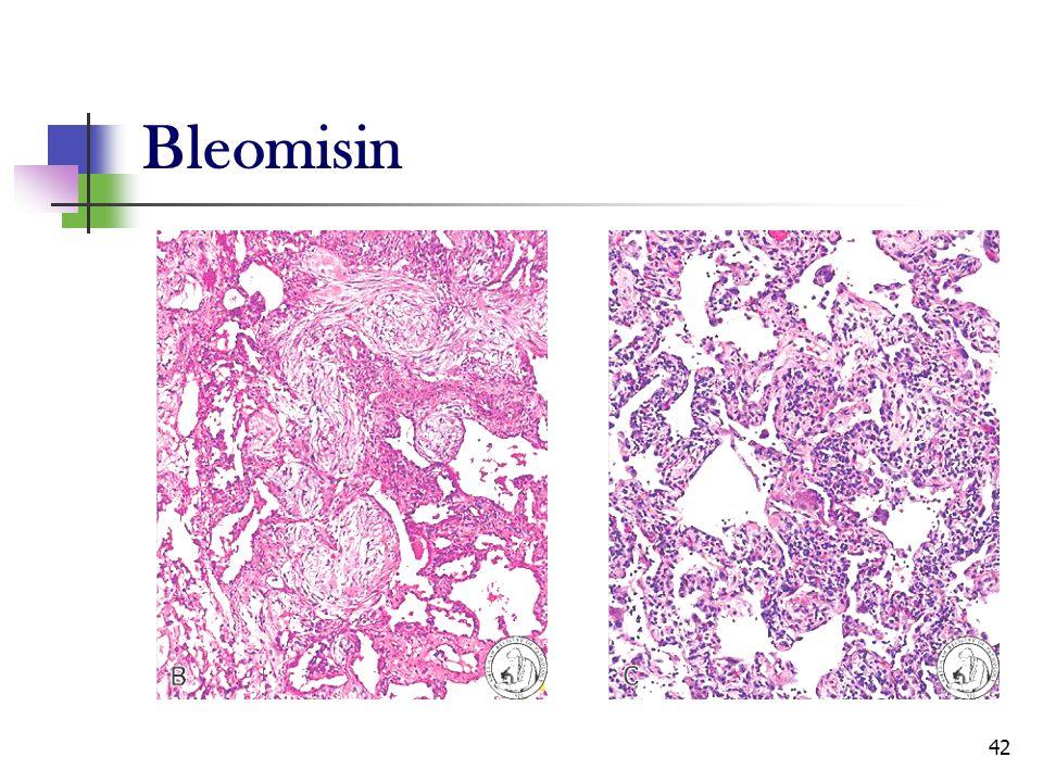 Bleomisin
