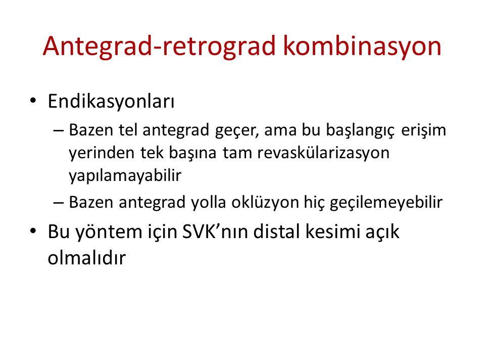 Antegrad-retrograd kombinasyon