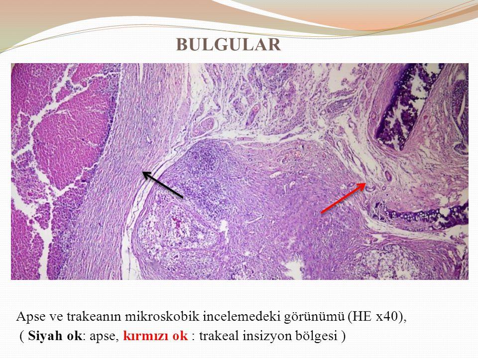 BULGULAR Apse ve trakeanın mikroskobik incelemedeki görünümü (HE x40),