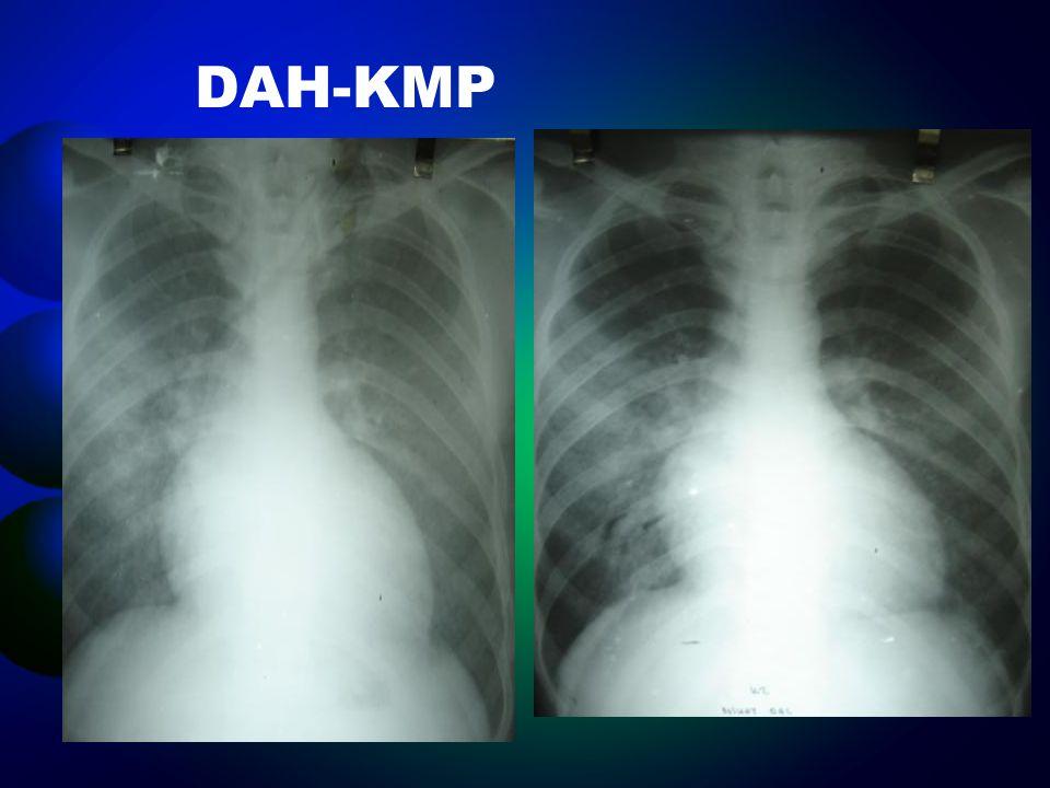 DAH-KMP