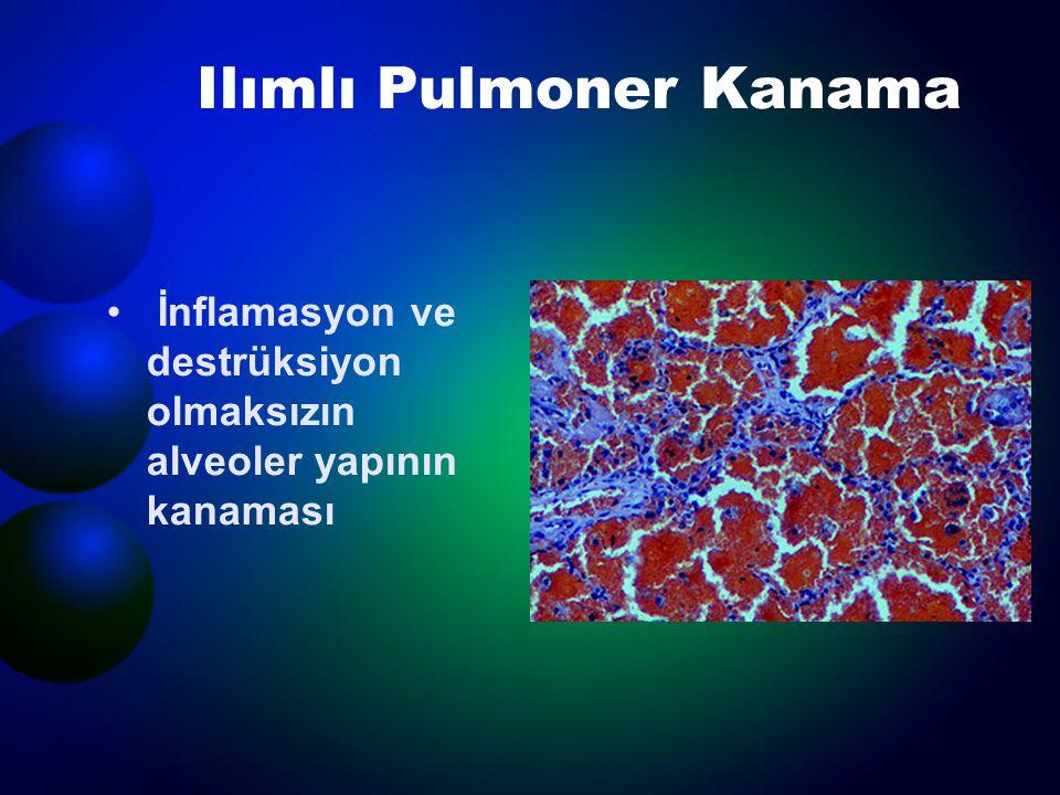 Ilımlı Pulmoner Kanama