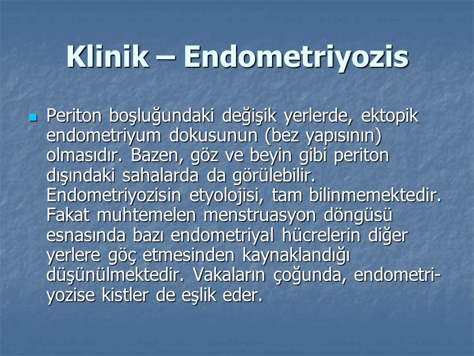 Klinik – Endometriyozis