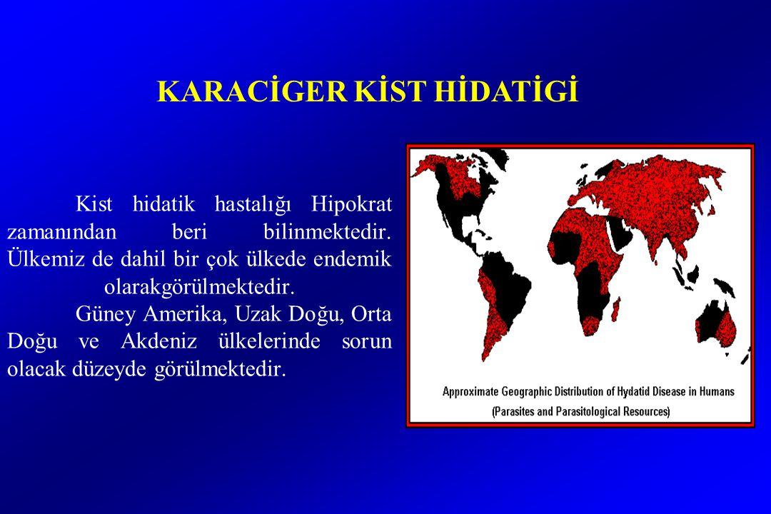 KARACİGER KİST HİDATİGİ