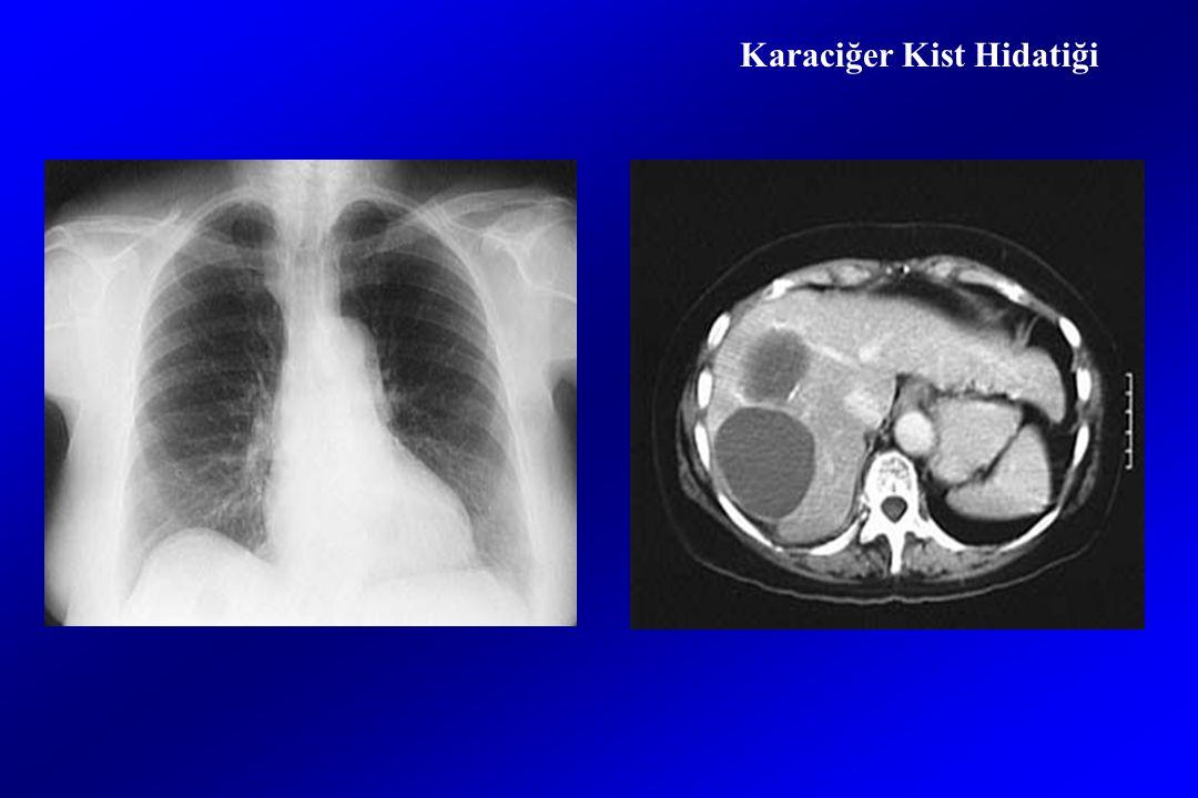 Karaciğer Kist Hidatiği