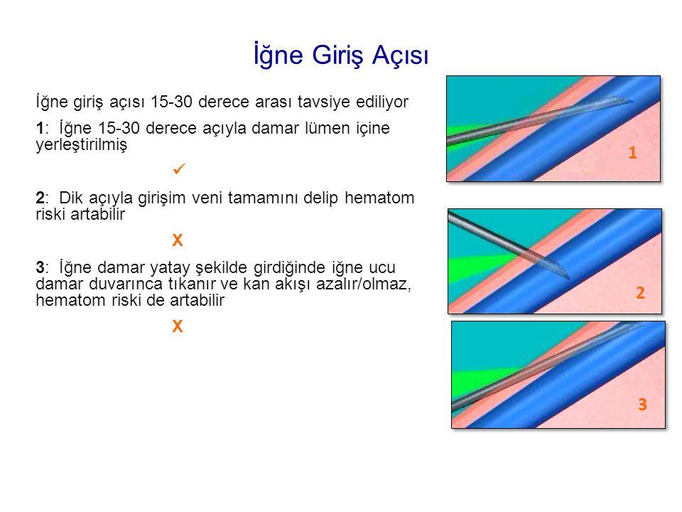 İğne Giriş Açısı İğne giriş açısı 15-30 derece arası tavsiye ediliyor. 1: İğne 15-30 derece açıyla damar lümen içine yerleştirilmiş.