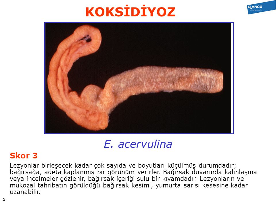 KOKSİDİYOZ E. acervulina