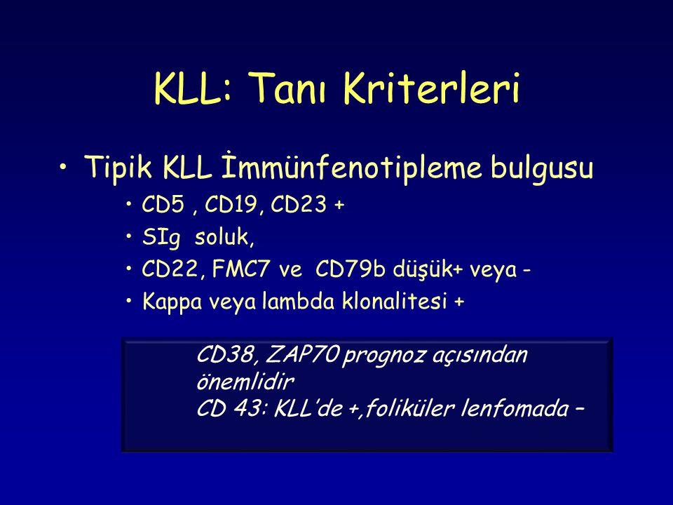 KLL: Tanı Kriterleri Tipik KLL İmmünfenotipleme bulgusu