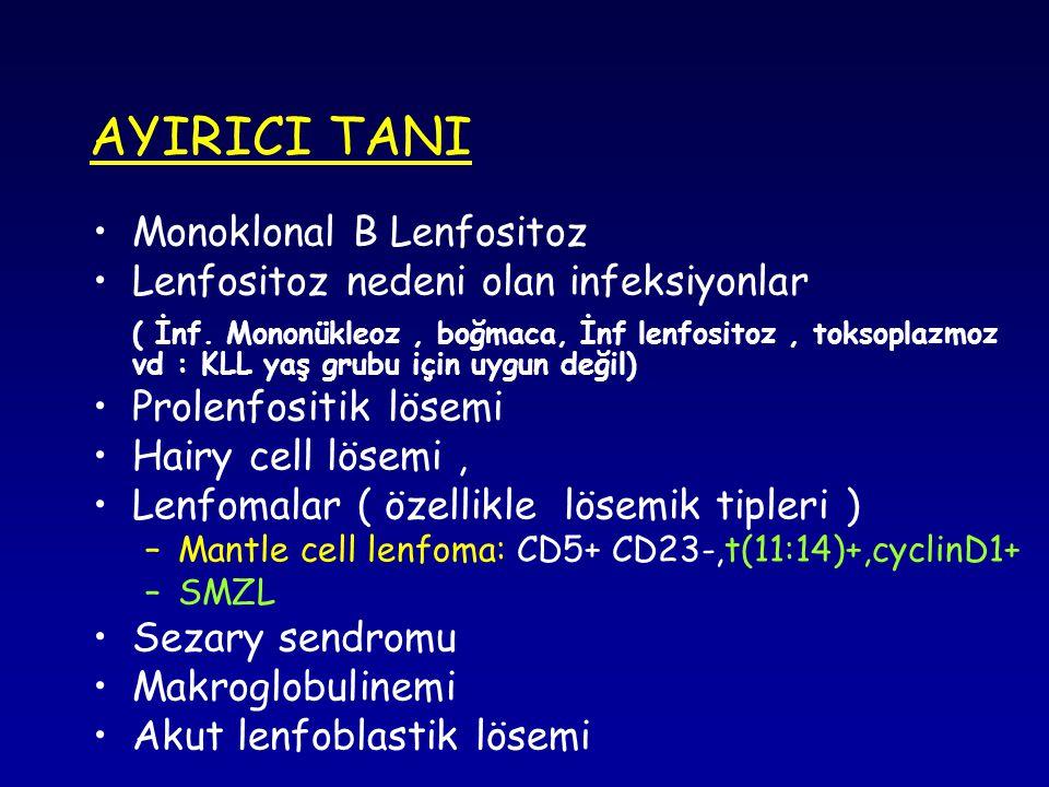 AYIRICI TANI Monoklonal B Lenfositoz