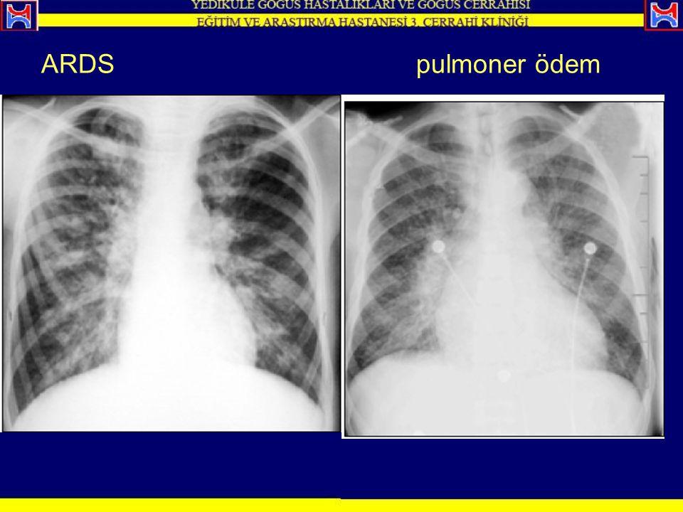 ARDS pulmoner ödem