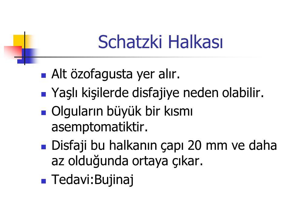 Schatzki Halkası Alt özofagusta yer alır.